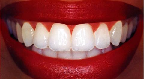 How To Have Natural White Teeth